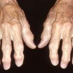 درمانهای موثر درد مفاصل