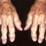 علت،علائم و درمان آرتروز مفصل دست