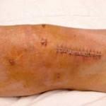 عوارض جراحی بازسازی رباط صلیبی قدامی با استفاده از تاندون کشکک یا همسترینگ چیست؟