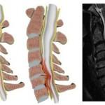 تشخیص و بهترین درمانهای تنگی کانال نخاع گردن