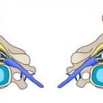 فتق دیسک گردن و جراحی آن