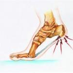 تاثیر بوتاکس در درمان درد پاشنه پا