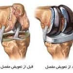 شرح عمل تعویض مفصل زانو