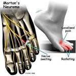 علل و علائم درد انگشتان پا