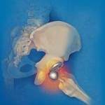 علت دررفتگی مفصل مصنوعی