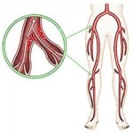 لخته شدن خون بعد از جراحی تعویض مفصل ران