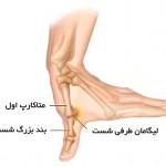 درمان رگ به رگ شدن شست دست