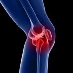 آرتروز زانو و درمان آن