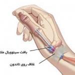 علت درد مچ دست و بیماری دکرون