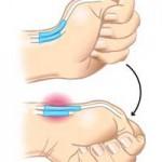 تشخیص و درمان بیماری دکرون مچ دست