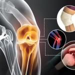علائم،عوامل و درمان آرتروز زانو
