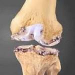 خشکی زانو بعد از شکستگی استخوان ران