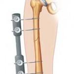 علائم و درمان شکستگی تنه استخوان ران در کودکان