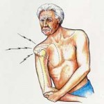 دررفتگی مفصل شانه و علائم آن