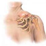 جراحی و علل شکستگی استخوان ترقوه در ناحیه شانه