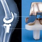 درباره جراحی تعویض مفصل زانو