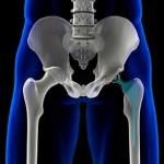 جراحی تعویض مفصل ران و عوارض آن
