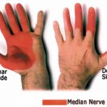 Botox-Found-Efficient-in-Treating-Carpal-Tunnel-Syndrome-2