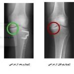زانوی پرانتزی یا ژنوواروم چگونه جراحی میشود