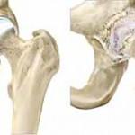 آرتروز مفصل لگن یا ران ( ساییدگی یا استئوآرتریت هیپ)