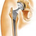علت ایجاد ساییدگی در مفصل ران چیست؟