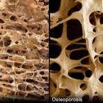 توانبخشی جنسی بعد از پوکی استخوان