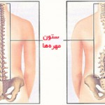 back_scoliosis-am2