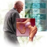 علل،درمان و علائم پوکی استخوان