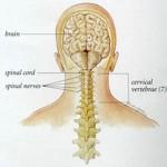جلوگیری از گردن درد و درمان آن