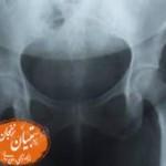 بهترین درمان شکستگی استخوان لگن