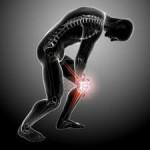 درمان زانو درد و پیشگیری از آن