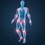 درمان و پیشگیری از آرتروز