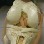 درمان،علت و علائم آسیب مینیسک زانو