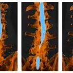 تشخیص،علائم و درمان تنگی کانال نخاع
