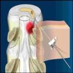 درمان بيماريهای مفصلی با روش های درمانی (PRP)