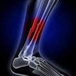 شکستگی استخوان و عوامل آن