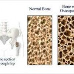 پوکی استخوان : پیشگیری