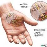 پارگی عصب دست و درمان آن