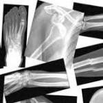 عوارض جوش خوردن شکستگی استخوان
