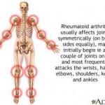 آرتروز زانو : درمان و علل