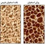 علائم و درمان پوکی استخوان