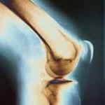 11 روش عملی برای تسکین درد زانو