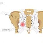 درمان و تشخیص درد باسن