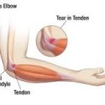 راههای درمان درد آرنج گلف بازان