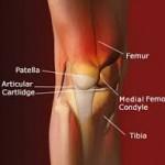 درمان و پیشگیری از درد جلوی زانو در نوجوانان