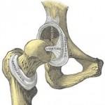 تشخیص دررفتگی مفصل ران ( در رفتگی لگن)