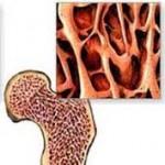 پوکی استخوان در بارداری و درمان آن