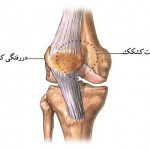 knee-dislocation-elmevarzesh