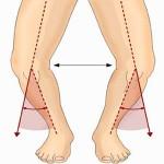 knee-genovarum