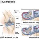 پارگی مینیسک زانو : درمان و علائم